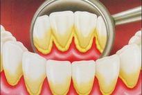 Como tirar tártaro dos dentes em casa - Tua Saúde