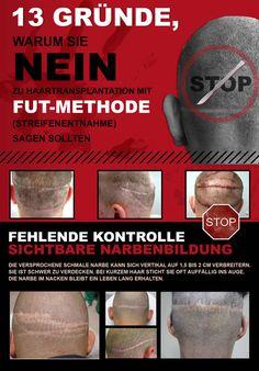 FUT Haarverpflanzung Haartransplantation Streifenmethode Nachher Fotos Ergebnisse Donor zone 5/6