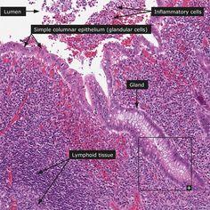 Normal: Appendix - 100x (insert: 200x)