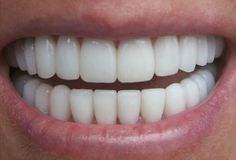 Teeth Anatomy and important dental tips #OralHygiene