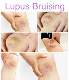 Understanding Lupus Bruising A purple butterfly may be the universal sign for lupus, but sometimes black and blue seems to be a more accurate color for the disease. Lupus appears to give me a visib… Lupus Diagnosis, Lupus Diet, Thyroid Cancer, Thyroid Health, Lupus Signs, Lupus Facts, Yoga For Arthritis, Rheumatoid Arthritis Symptoms, Lupus Flare Symptoms