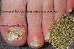 Los hongos en las uñas son una infección que preocupa a muchas personas debido a que estropea el aspecto de las manos y a que puede traer consigo molestias y mal olor.