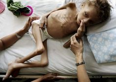"heart breaking    ""Nine-year-old Jason Lopez rests on a bed at the Catarino Rivas hospital in San Pedro Sula, Honduras, in this March 8, 2008 file photo. He was found weighing only 8 kg, which is normal for a two-year-old. He now weighs 17.2 kg. (REUTERS/Edgard Garrido)"""