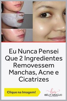 remover manchas no rosto Remover Manchas, Spots On Face, Homemade Recipe, Tips, 2 Ingredients