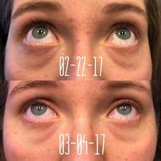 how to get rid of dark line under lip