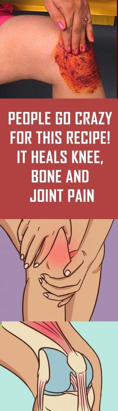 People Go Crazy For This Recipe! It Heals Knee, Bone and Joint Pain People Go Crazy For This Recipe! It Heals Knee, Bone and Joint PainPeople Go Crazy For This Recipe! It Heals Knee, Bone and Joint Pain June Natural Home Remedies, Natural Healing, Holistic Healing, Knee Bones, Bone And Joint, Health Remedies, Arthritis Remedies, Herbal Remedies, Cold Remedies