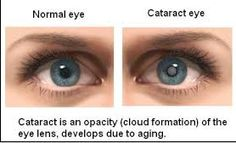 This cloudy of the eye lens can be due to old age or because of some injuries to the eye.  Click here for more details.