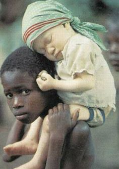 Big brother carrying his albino baby sister in an African village. She will need to be protected all her life.