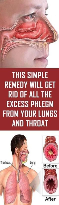 Sinusitis Remedies This Simple Remedy Will Get Rid Of All The Excess Phlegm From Your Lungs And Throat Natural Health Tips, Natural Health Remedies, Natural Cures, Natural Healing, Herbal Remedies, Sinus Remedies, Holistic Remedies, Diarrhea Remedies, Natural Cough Remedies