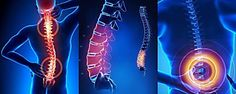 Back Pain - Facts, Causes and Prevention Tips