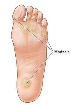 Calluses can impact athletic performance. Knock Knees, Foot Remedies, Crochet Slipper Pattern, Beauty Makeover, Cosmetic Treatments, Christmas Mesh Wreaths, Natural Cosmetics, Feet Care, Pedicure