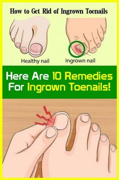 10 remedies for toenails for ingrown! Ingrown Toenail Remedies, Ingrown Toe Nail, Uk Health, Health Tips, Health Fitness, Health Benefits, Women Health, Fitness Tips, Body Fitness
