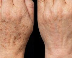 S touto maskou zabudnete na botox: domáca maska, ktorá vymaže všetky vrásky! Brown Spots On Hands, Spots On Legs, Dark Spots, Skin Care Regimen, Skin Care Tips, Beauty Skin, Health And Beauty, Age Spot Removal, Beauty Hacks Eyelashes