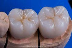 Molares Dental Aesthetics, Dental Art, Anatomy, Teeth, Porcelain, Ceramics, Food, Smile, Dental Scrubs
