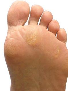 Bone spurs on bottom of foot