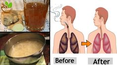 According to the American Lung Association, there are 600 ingredients in cigarettes and when burned, they create over 7000 toxins. Almost 69 of these toxins cause cancer. Most of them are also include Go Cleanse, American Lung Association, What Happened To You, Fun Drinks, Lunges, Health And Beauty, Cancer, Marvel, Bottle