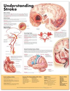 Stroke Chart - Stroke Poster - Anatomical Chart Company - AnatomyStuff