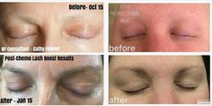 Cathy and Teresa both had chemo and her are their results with Lash Boost after losing their lashes completely. Crows Feet, Rodan And Fields, Sensitive Skin, Lashes, Skin Care, Eyelashes, Skincare Routine, Skins Uk, Skincare