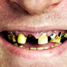 Top Causes Of Rotten Teeth, No enamel left of teeth? Or just poor dental care! Like not brushing your teeth twice a day? I Do Not Like This! Having worked as a Dental Assistant this makes me cringe! With so many advancements and many even free! Some Dentist will work out payment plans if you have bad teeth, some will fix it for free! Dental Schools, University and Oral Surgery places will let you be a volunteer and fix your teeth for free! Also Obamacare, Americare offer free dental…