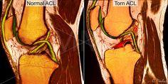 La utilidad realzar - mejorar la imagen radiológica con color Acl Ligament, Knee Ligaments, Cruciate Ligament, Acl Knee, Knee Injury, Anatomy Of The Knee, Acl Recovery, Acl Surgery, Radiology Imaging