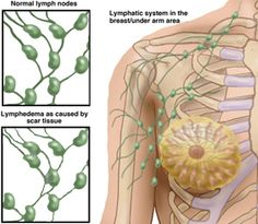 Lymphedema is swelling generally in the arms or legs due to a blockage in your lymphatic system. It's estimated that about one third of women who undergo axillary lymph node dissection during breast cancer treatment will develop lymphedema. Identifying and treating lymphedema early helps ensure faster and better outcomes, but even treatment later on, during the chronic stages of the disease, can still help. Repinned by  SOS Inc. Resources  http://pinterest.com/sostherapy.