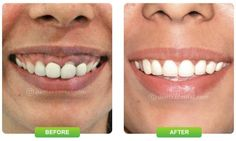 Dentists are very proficient in all kinds of procedures and surgeries and the best part is that they are extremely well aware of the latest developments in the field. http://www.dentzz.com