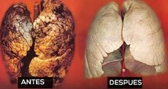 Además de afectar a los fumadores, los problemas pulmonares también pueden afectar a los no fumadores y a los niños. Esta receta sirve para todos.Limpia los pulmones de toxinas, incluyendo la nicotina y el alquitrán, en sólo tres días.\r\n[ad]\r\nEs importante recordar que no debe consumir productos lácteos dos días antes de usar esta técnica para la limpieza de pulmón, ya que pueden ralentizar el proceso de desintoxicación.\r\n\r\nEn la noche antes de su primer día de desintoxicación de…