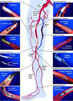 Vascular Ultrasound, Ultrasound Sonography, Heart Anatomy, Medical Coding, Cardiology, Biology, Surgery, Education, School