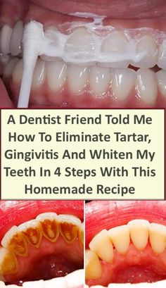 HOW TO ELIMINATE TARTAR, GINGIVITIS AND WHITEN YOUR TEETH IN 4 STEPS WITH THIS HOMEMADE RECIPE – Fitness Tati
