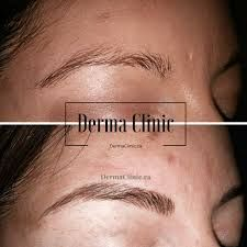 Microblading hairstrokes only will create enough fullness and shape for these brows. This also adds a nice colour pop for her face. Eyebrows, Eyes, Face, Color, Eye Brows, Eyebrow, Colour, Faces, Brows