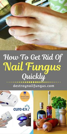 How To Get Rid Of Toenail Fungus Quickly (What You Need To Know) Yellow Things yellow under toenail Fingernail Fungus, Nail Fungus Laser, Toenail Fungus Treatment, Fungal Infection, Home Treatment, Clean Nails, Health And Fitness Tips, Free Makeup, Mushrooms