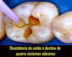 Resistência de união à dentina de quatro sistemas adesivos | OVI Dental