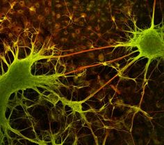 Differentiated human NT-2 neuronal cells, 6 weeks old | 2004 Photomicrography Competition | Nikon Small World