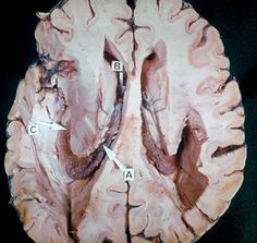 A - Choroidplexus; B - Interventricular foramen; C - Choroid plexus in inferior horn of lateral ventricle