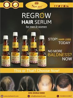 No more baldness  now . No more hair fall. Use today  KMG's   KESH AMRIT. CALL NOW  FOR ORDER +91-9602325867.