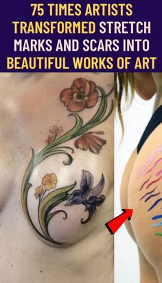 #artists #transformed #stretch #marks #scars #beautiful #works #art