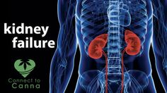 Chronic kidney disease is a condition that results in the progressive loss in renal function of a period of months or years. Medical marijuana is a clinically proven alternative treatment option that can greatly benefit individuals who suffer from chronic renal failure. You must visit here to know more http://www.connect2canna.com/contact/ #MarijuanaTreatment #Medicines #cannabis #marijuana #ADD #ADHD #diabetes