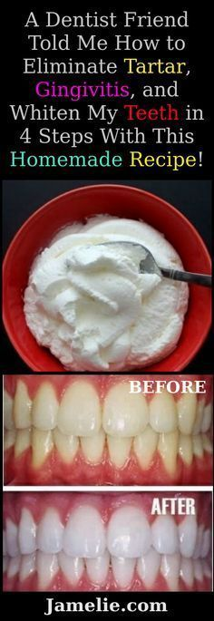 A Dentist Friend Told Me How to Eliminate Tartar Gingivitis .- A Dentist Friend Told Me How to Eliminate Tartar Gingivitis and Whiten My Teeth in 4 Steps With This Homemade Recipe - Teeth Whitening Remedies, Natural Teeth Whitening, Homemade Teeth Whitening, Whitening Kit, Homemade Toothpaste, Tooth Whitener Homemade, Homemade Mouthwash, Teeth Care, Fix Teeth