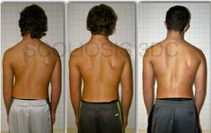Hard work pays off. Improve scoliosis and posture with scoliosis exercise and scoliosis bracing. This patient wears a Cheneau Gensingen and does a Schroth method (Best Practice) program. #Scoliosis #ScoliosisBeforeAndAfter #ScoliosisExercise #SchrothMetho