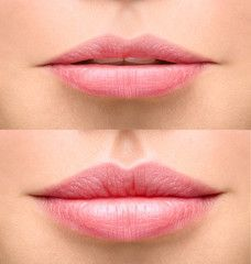 Lips before and after augmentation - come see us for all of your lip smooch boosting needs at Renwal Skin SpaPouts are in! Lips before and after augmentation - come see us for all of your lip smooch boosting needs at Renwal Skin Spa Dermal Fillers Lips, Facial Fillers, Botox Fillers, Lip Fillers, Lip Injections, Lip Plumper, Botox Lips, Juviderm Lips, Plump Lips