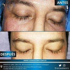 Claudia Toro MD | Estéticas, Medicina estética Bogotá Medicine, Periorbital Dark Circles