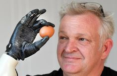 'Life-changing' NZ-made bionic hand up for prestigious design award News Apps, Immersive Experience, Free News, Design Awards, Teacher Resources, Innovation, Challenges, Life Changing, Kiwi