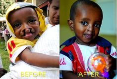 We are smiling because little Tenebe now has a bright future in front of him.    What made you smile today?