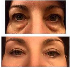 Instantly Ageless Facelift in a Box Anti Aging Tips, Anti Aging Serum, Anti Aging Skin Care, Eye Serum, Ageless Cream, Skin Line, Anti Aging Supplements, Prevent Wrinkles, Skin Firming