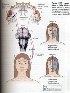 "usmlenotebook: "" Note that only the LMN that are innervating muscles of forehead and eye are getting bilateral corticobulbar innervation. In contrast LMN that serve muscles of the nose and mouth are only receiving contralateral corticobulbar..."