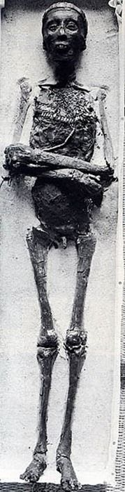 Mummy of Tutankhamun. Apparently his penis was stolen, for what I don't know, nor do I want to...