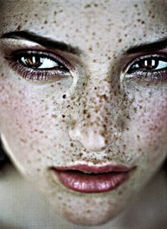 Beautiful freckles.