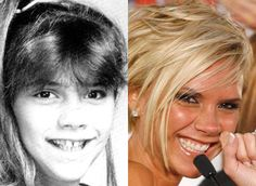21 Best Smile Before and Afters images in 2013   Celebrity smiles