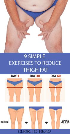 9 Simple & Best Exercises To Reduce Thigh Fat Fast At Home ! 9 Simple & Best Exercises To Reduce Thigh Fat Fast At Home ! Having fat or plump does mean that you cannot get rid of it , and also this sh Fitness Workout For Women, Body Fitness, Physical Fitness, Fitness Legs, Fitness Style, Fitness Design, Fitness Fashion, Squats Fitness, Mens Fitness