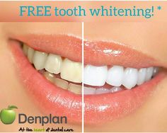 Free tooth whitening if you join denplan in the month of April! Please contact the surgery for more information on 01213553784 Info @ Suttoncoldfielddental.co.uk And please follow our page on Instagram @suttondentist #dentalhygiene #toothwhitening #denplan #suttoncoldfield #smile #dentist #hygienist #aesthetic #dentistry #dentalcare #birmingham #specialoffer #discount #teeth #westmidlands #walsall #perrybarr by georginabate Our General Dentistry Page…